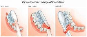 Richtiges Zähneputzen.Zahnputztechnik, von oben, von hinten und seitlich
