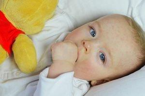 Baby mit hellrotem Ausschlag im Gesicht