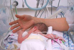 frühgeborenes Baby im Brutkasten