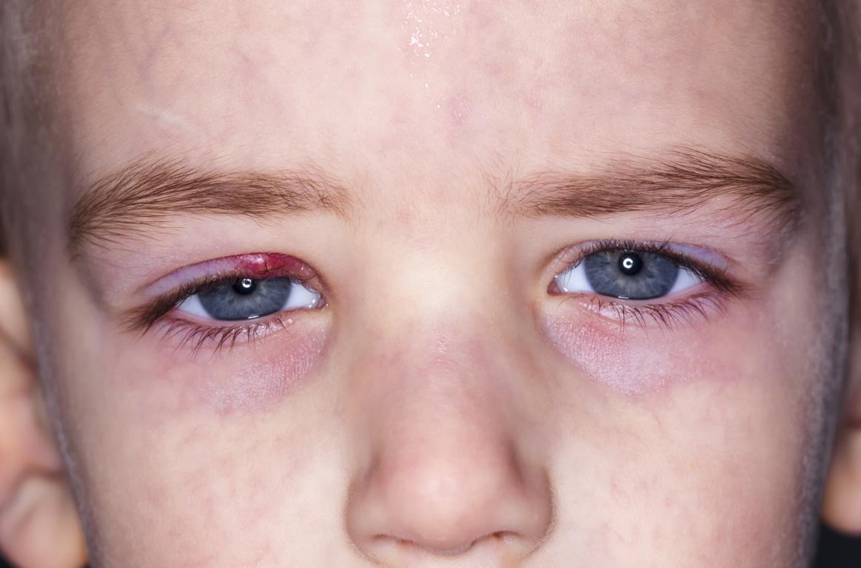 Entzündung am Auge