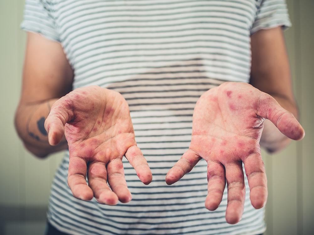 Hand Fuss Mund Krankheit Tipps