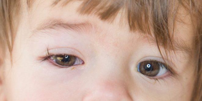 Kind mit Bindehautentzündung