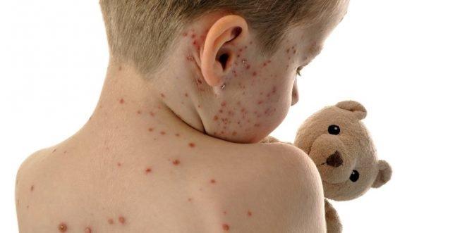 Kind mit Masern hält Teddybär