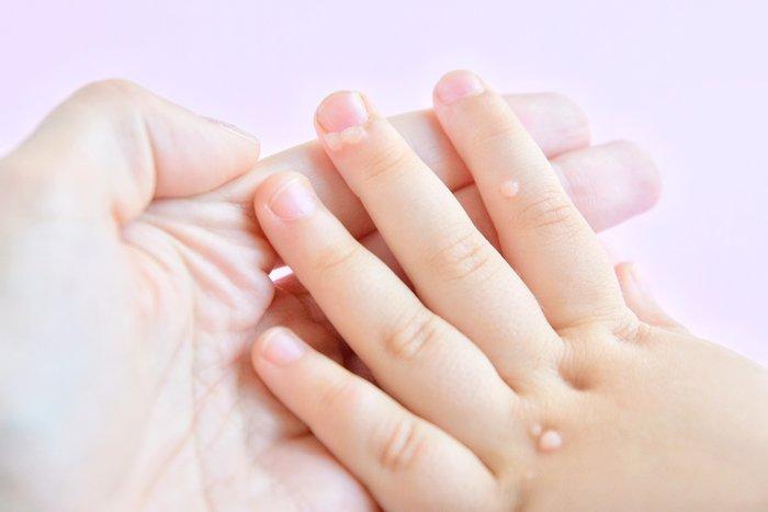 kleine Hand mit Warzen