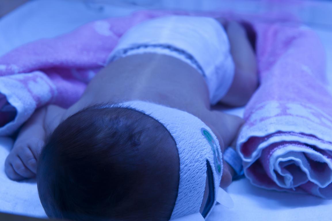 Babygelbsucht Licht