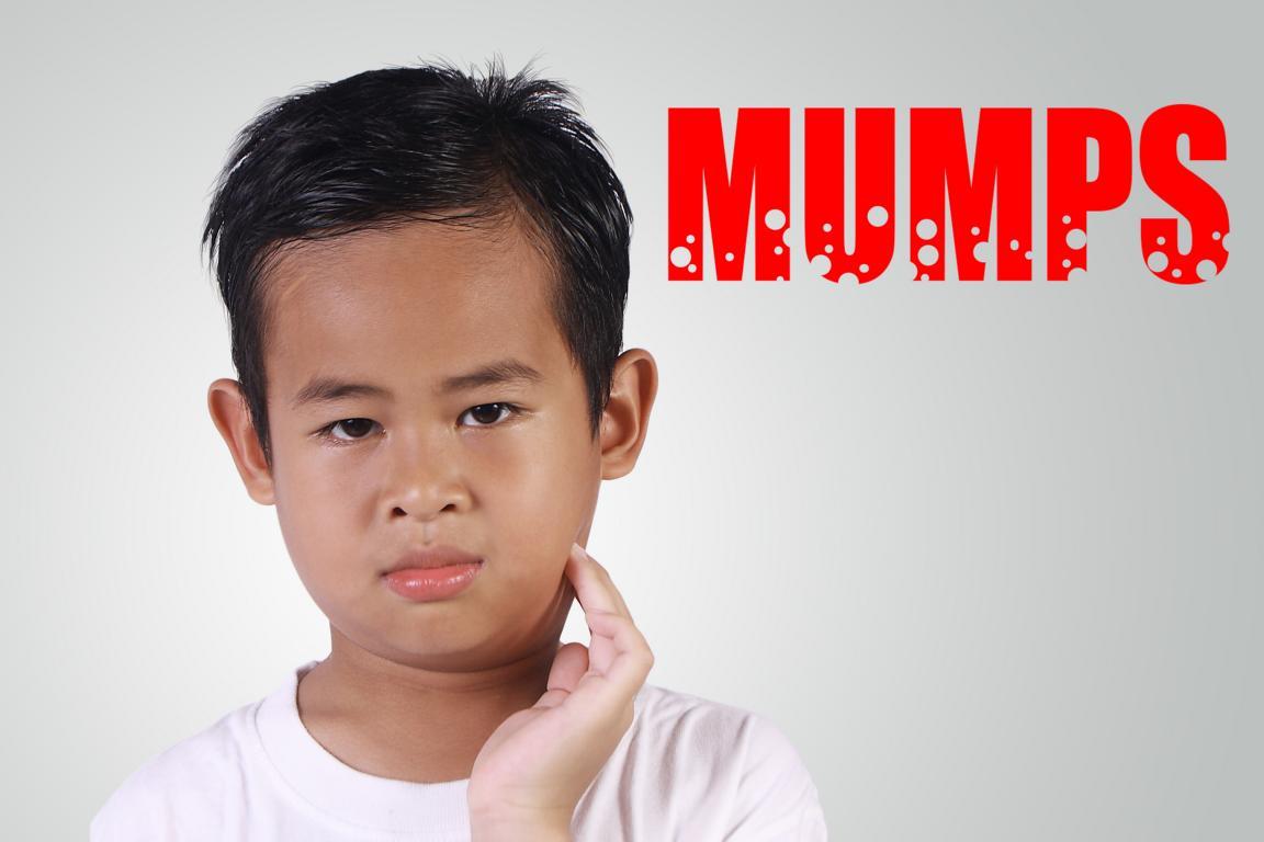 Kinder mit Mumps