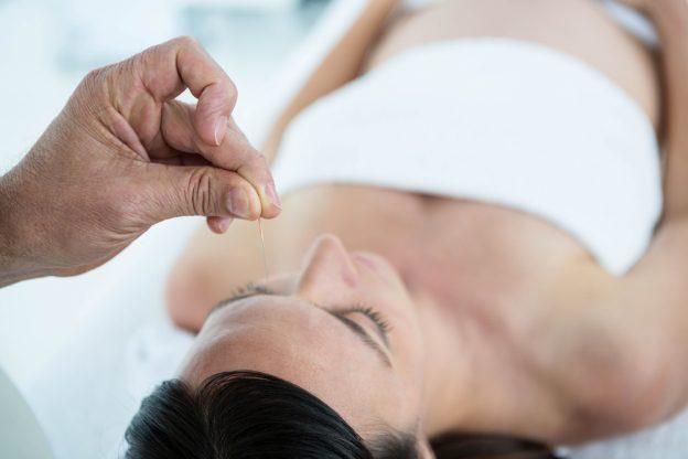 Akupunktur während der Schwangerschaft