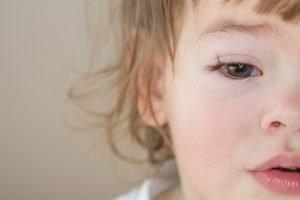 kleines Kind mit Bindehautentzündung am rechten Auge