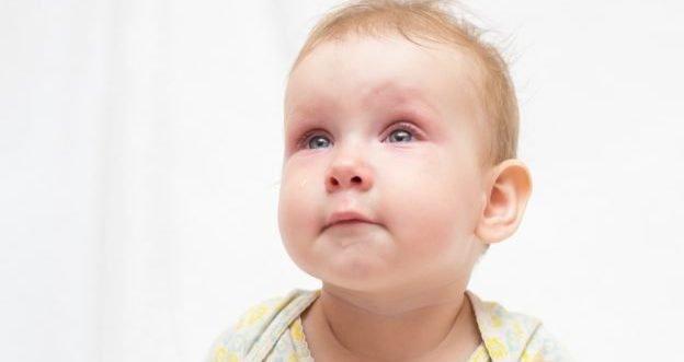 Was tun bei einer Bindehautentzündung bei ihrem Baby?