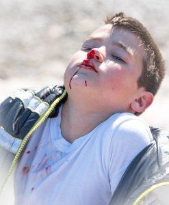 Kind mit blutiger Nase