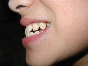 Kind zeigt Zähne
