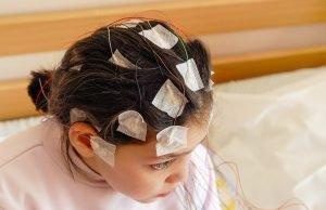 kleines Mädchen mit EEG-Elektroden am Kopf