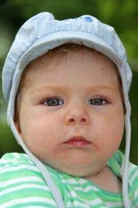 Baby mit Ekzem im Gesicht