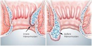 innere und aeußere haemorrhoiden