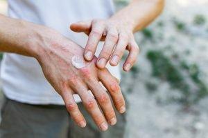 Hand eincremen gegen Schuppenflechte