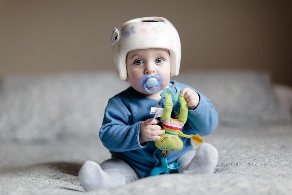 Kind mit Helm fuer helmtherapie