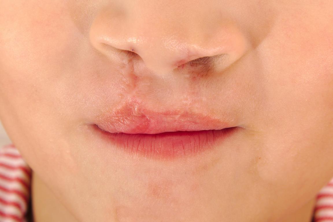 lippenspalte