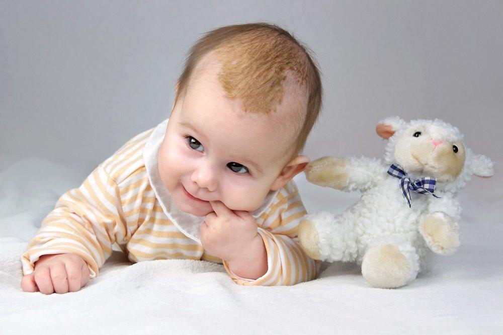 Kind mit Milchschorf krabbelt mit Kuscheltier auf Teppich