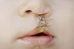 operierte Lippenspalte