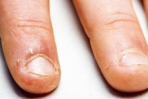 Angekaute Fingernägel eines Kindes