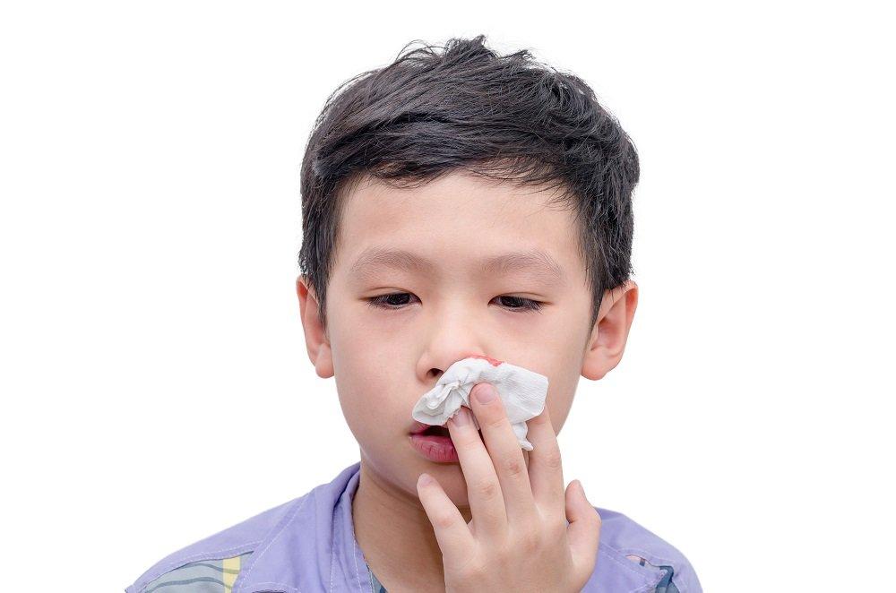Nasenbluten Kind