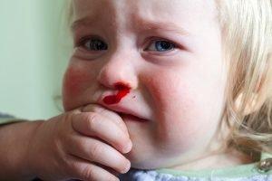 Nasenbluten bei einem Kleinkind