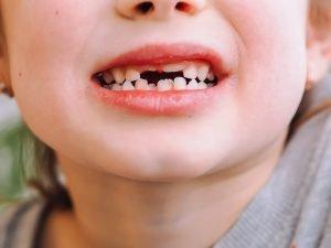 Junge mit Milchzähnen und bleibenden Zähnen