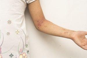 Schuppenflechte am Arm eines Kindes