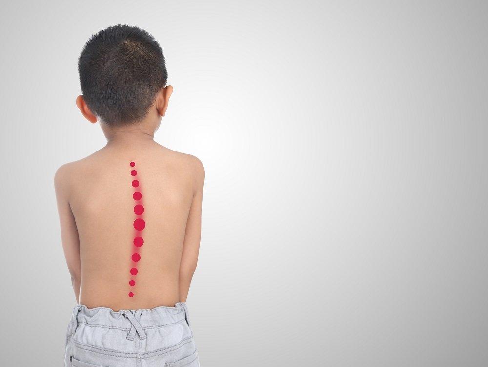Kind mit krummer Wirbelsäule