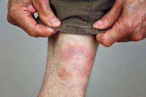 Wanderröte am Bein eines Mannes
