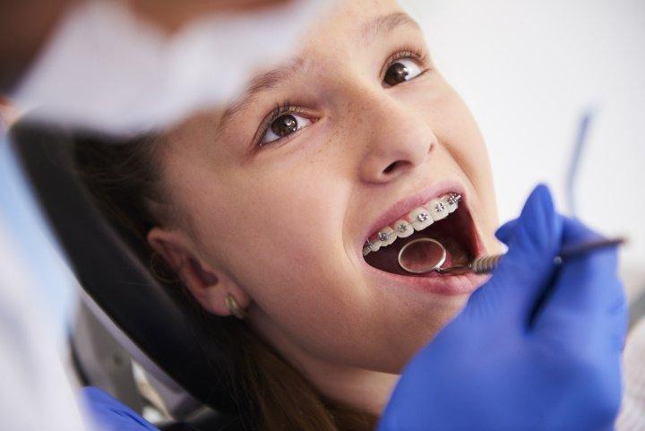 Zahnzusatzversicherung für Kinder: Sinnvoll oder nicht?